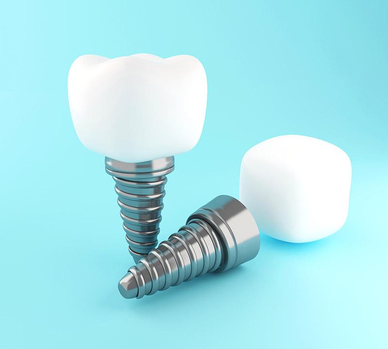 3d-dental-tooth-implant-K8W7QWP