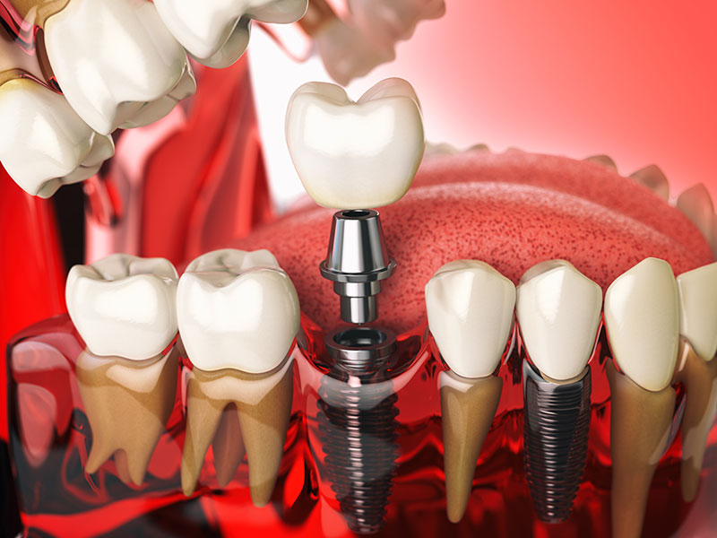 tooth-implant-in-the-model-human-teeth-gums-and-de-PQ9Z6GD